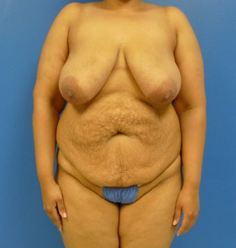 33 y.o. – female – breast augmentation with wise pattern lift, abdominoplasty; 420 cc Saline Implants before 1359572