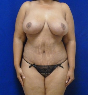 33 y.o. – female – breast augmentation with wise pattern lift, abdominoplasty; 420 cc Saline Implants after 1359572