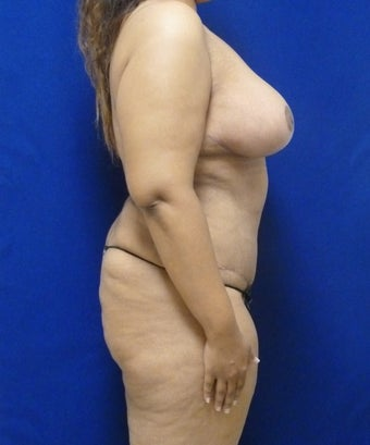 33 y.o. – female – breast augmentation with wise pattern lift, abdominoplasty; 420 cc Saline Implants 1359572
