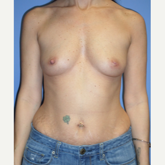 35-44 year old woman treated with Breast Implants before 3370232