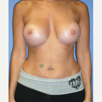35-44 year old woman treated with Breast Implants after 3370232
