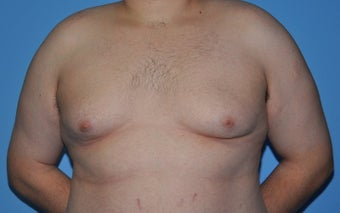 Bilateral Gynecomastia Correction before 776043