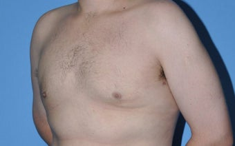 Bilateral Gynecomastia Correction 776043