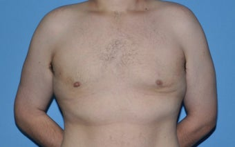 Bilateral Gynecomastia Correction after 776043