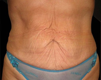 Abdominoplasty following weight loss