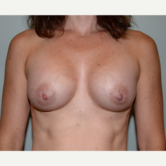 32 year old woman treated with Breast Augmentation after 3102916