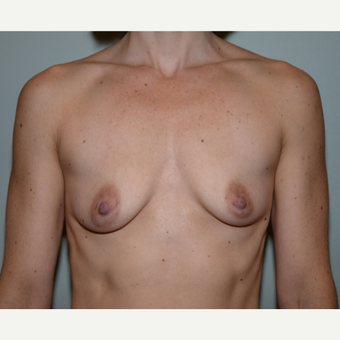 32 year old woman treated with Breast Augmentation before 3102916