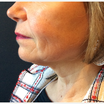 55-64 year old woman treated with Ultherapy before 3460256