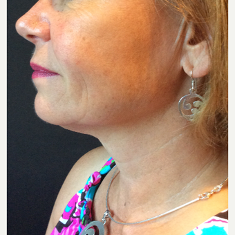 55-64 year old woman treated with Ultherapy after 3460256
