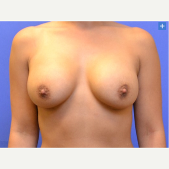 25-34 year old woman treated with Breast Augmentation - Gel after 3345197