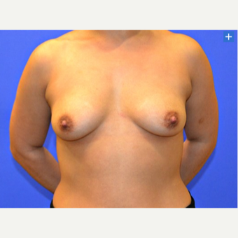 25-34 year old woman treated with Breast Augmentation - Gel before 3345197