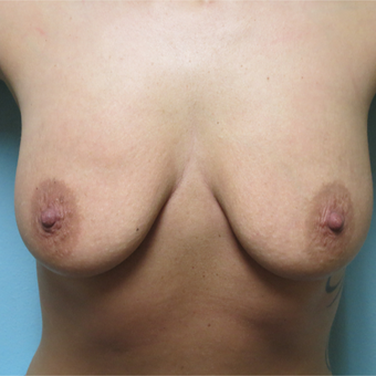 25-34 year old woman treated with Breast Lift before 3565989