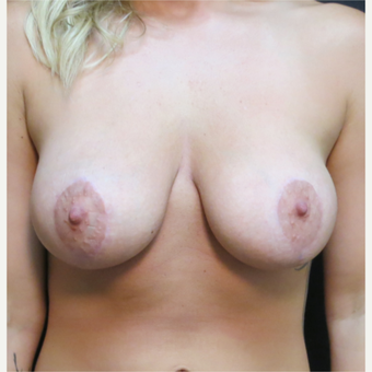 25-34 year old woman treated with Breast Lift after 3565989