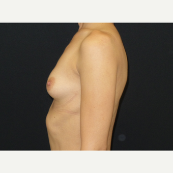 25-34 year old woman treated with Breast Implants before 3650931