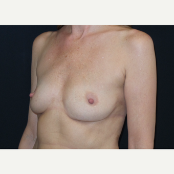 45-54 year old woman treated with Breast Augmentation before 3305110