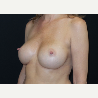 45-54 year old woman treated with Breast Augmentation after 3305110