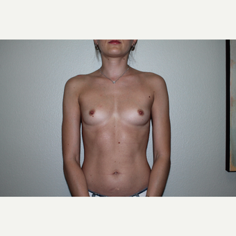 35-44 year old woman treated with Breast Lift with Implants before 3769707