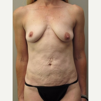 35-44 year old woman treated with Mommy Makeover before 3005331