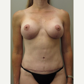 35-44 year old woman treated with Mommy Makeover after 3005331