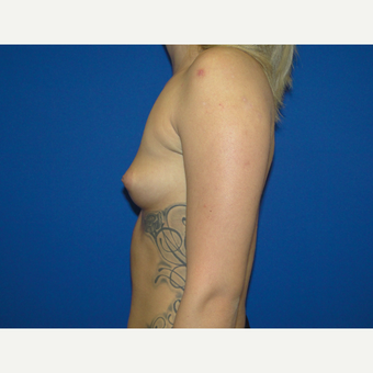 Breast Augmentation with 425 cc Silicone Implants before 3495811