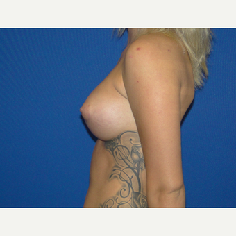 Breast Augmentation with 425 cc Silicone Implants after 3495811