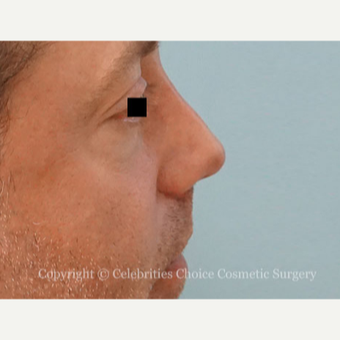 35-44 year old man treated with Revision Rhinoplasty after 3198197