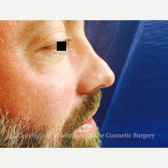 35-44 year old man treated with Revision Rhinoplasty before 3198197