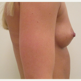 Breast Augmentation before 3035937