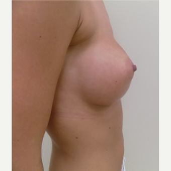 Breast Augmentation after 3035937
