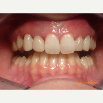 Smile Makeover after 2654490