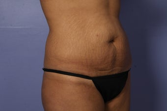 Tummy Tuck before 686063