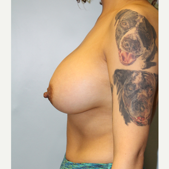 25-34 year old woman treated with Breast Augmentation after 3692211