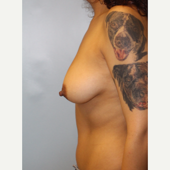 25-34 year old woman treated with Breast Augmentation before 3692211