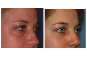 34 year old woman with thyroid eye disease treated for puffy lower lids before 911752
