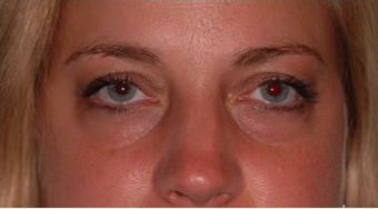 34 year old woman with thyroid eye disease treated for puffy lower lids 911752