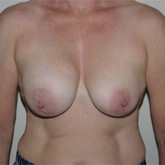 55-64 year old woman treated with Breast Implant Removal before 3408463