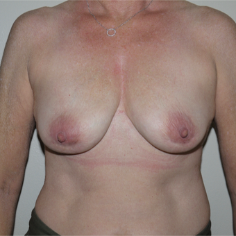 55-64 year old woman treated with Breast Implant Removal after 3408463