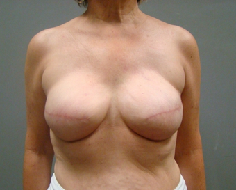 Breast Reconstruction after 1358634