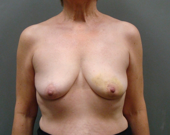 Breast Reconstruction before 1358634