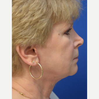 "55-64 year old woman treated with ""New Necklift"" after 3480953"