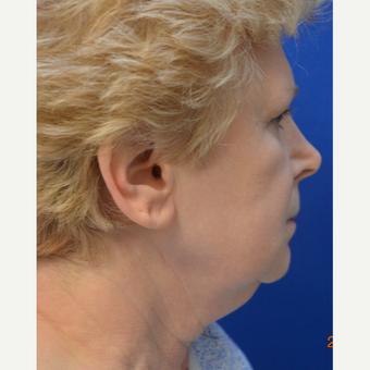"55-64 year old woman treated with ""New Necklift"" before 3480953"