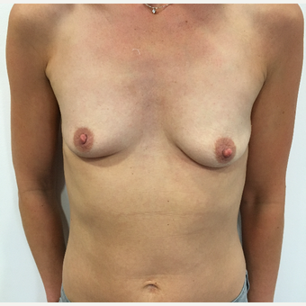 Breast augmentation before 3767243