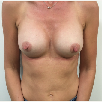 Breast augmentation after 3767243