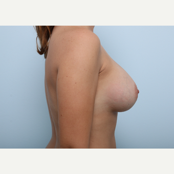 Breast Augmentation after 3459837