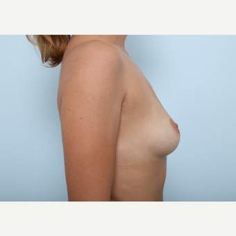 Breast Augmentation before 3459837