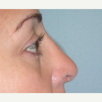 45-54 year old woman treated with Rhinoplasty after 3074896