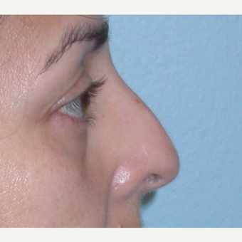 45-54 year old woman treated with Rhinoplasty before 3074896