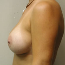 Breast Augmentation after 3680714