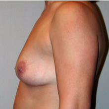 Breast Augmentation before 3680714