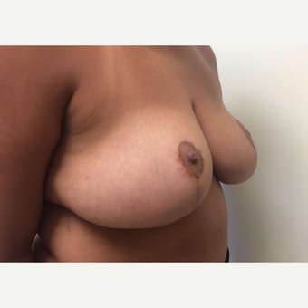 25-34 year old woman treated with Breast Reduction after 3629370